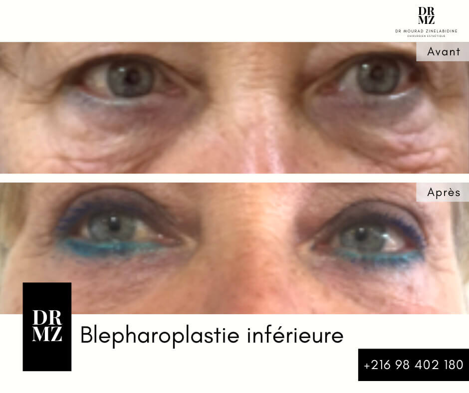 blepharoplasty photos gallery tunisia