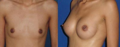 Breast implants tunisia