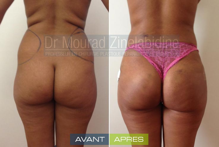 Photos lipofilling fesses Tunisie