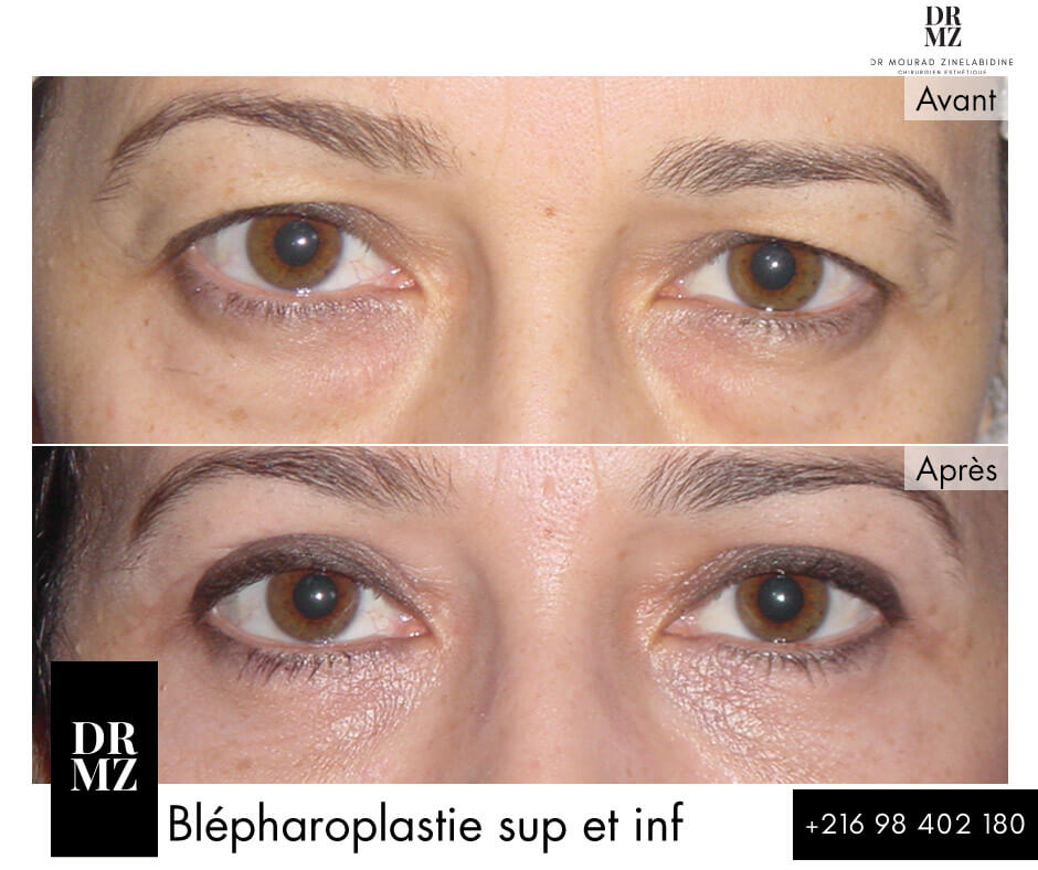 Photos blepharoplastie Tunisie
