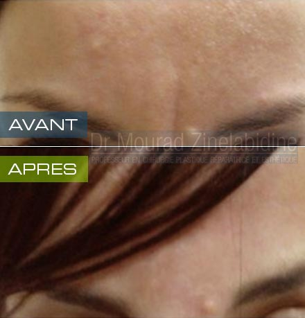 Photos injection botox Tunisie