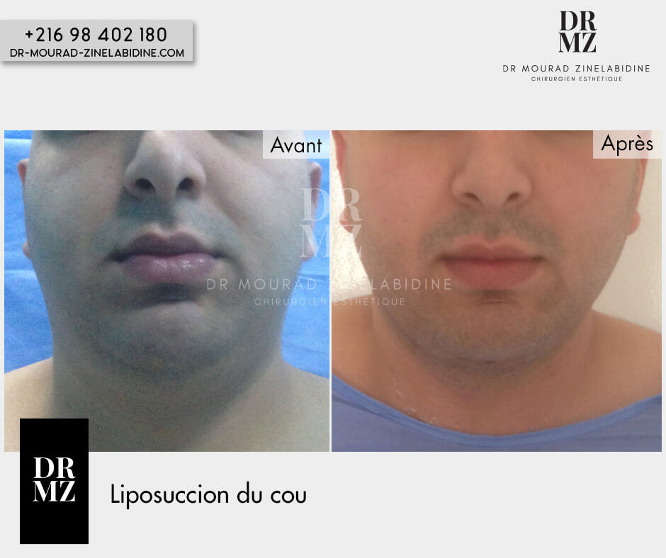 Liposuction of the neck Tunisia