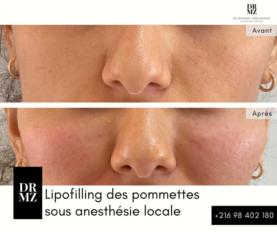 Photo avant & après FACIAL LIPOFILLING