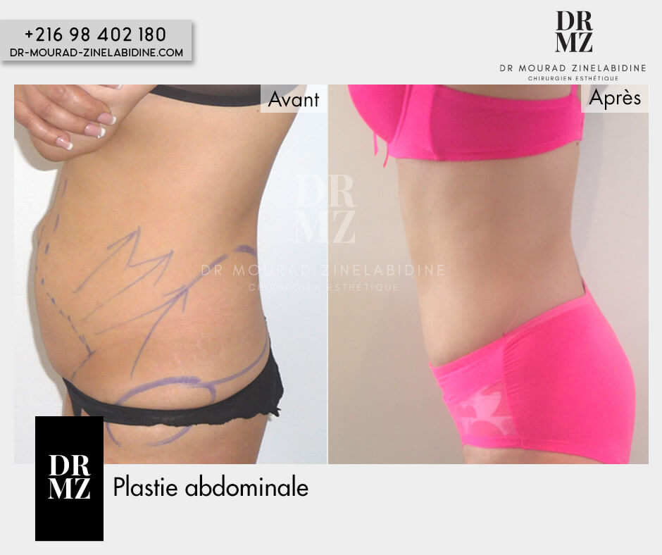 Abdominoplasty Tunisia