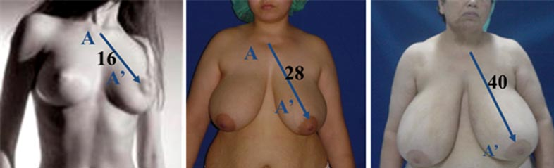 breast Uplift Tunisia