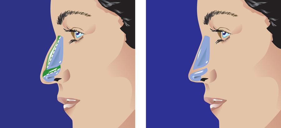 Rhinoplastie chirurgie du nez en Tunisie